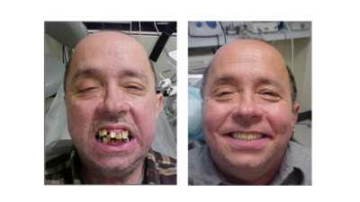 James Pierce before and after emergency dental care.